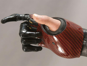 Upper limb prosthetic